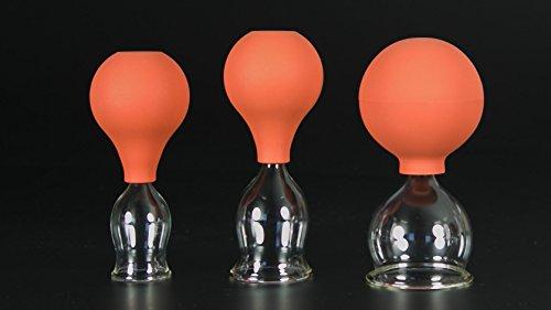 3er Schröpfglas-Set mit Ball 25-35-45mm zum professionellen, medizinischen, feuerlosen Schröpfen mundgeblasen, handgeformt, Schröpfglas, Schröpfgläser, Lauschaer Glas das Original