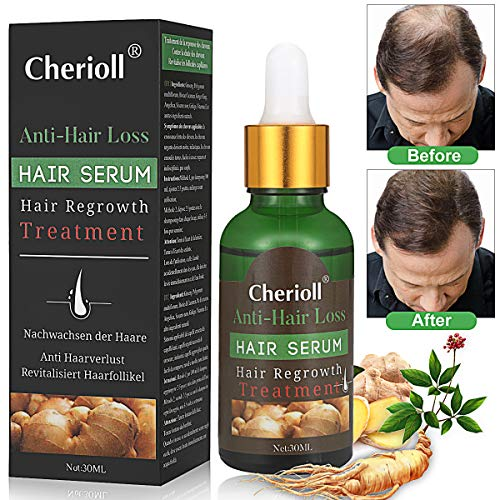 Haar Wachstum Serum, Haarausfall und Haar-Behandlung, Haar Serum, Neues Haarwachstum stimuliert, fördert dickeres, Volleres und schneller wachsenden Haar (Pattern2)