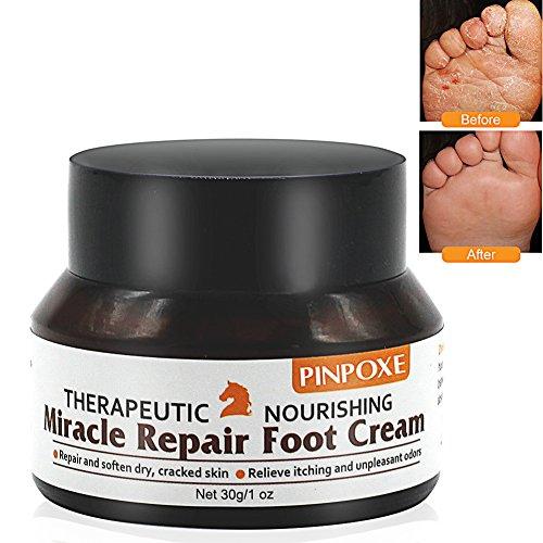 Fußcreme, Fußpilz Creme, fusspflege creme, fußbalsam, Pferdesalbe für Füße-Trockene Spröde Haut Fußcreme, kuriert und verhindert Pilzinfektionen, Fußschweiß und Fußgeruch, 30g