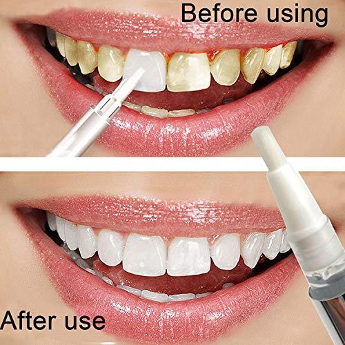 nuiko Zahnaufhellung Gel Stift Dental White Bleaching Zahn Aufheller Fleckenentferner Bleachings