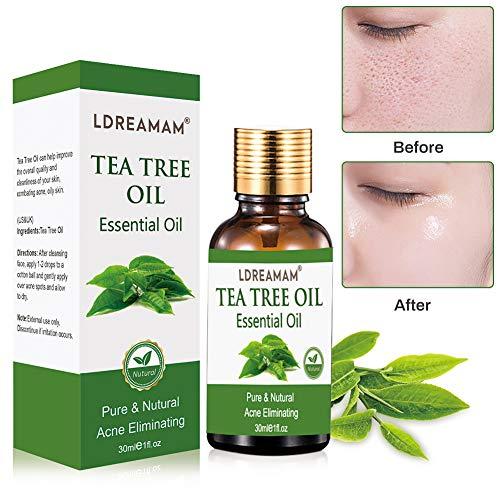 Teebaumöl,naturreines ätherisches Öl,Akne Öl,zur Anwendung auf unreiner Haut,Pflege Reinigung,Anti Pickel,Gegen Akne,Entzündungshemmend,Hautsympathisch